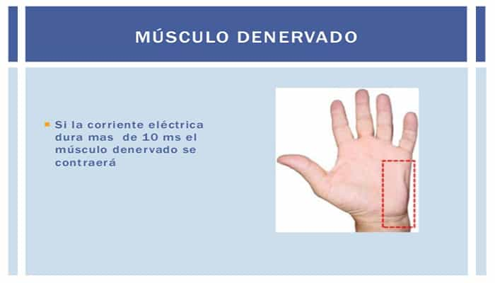 Efectos De La Corriente Eléctrica en el Músculos flexores