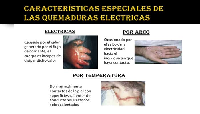 Quemaduras por shock eléctrico